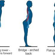 Straighten Up on World Spine Day